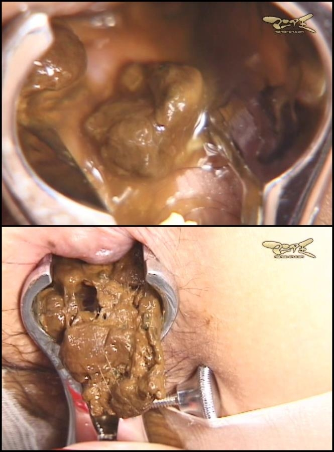 Uncensored closeup defecation medical scat fetish (SD 720x486)